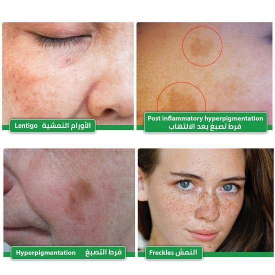 Melan IQ Hyperpigmentation Cream, Dark Spot Cream, Skin Spot Cream, Skin Whitening Cream, Pharmaceutical Cream, Revolutionary Formula of Plant Extract, Alpha Arbutin, Glabridin, 30ml